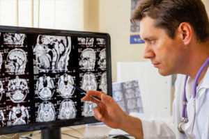 A doctor looks at scans of a brain on a computer